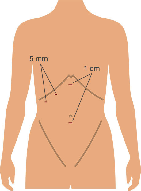 Picture showing incisions for lap cholecystectomy